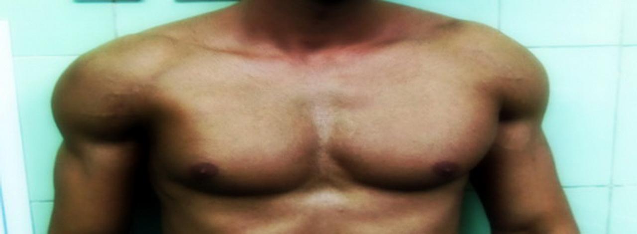 پارگی عضله سینه ای بزرگ (پکتورالیس ماژور)